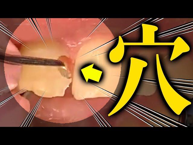 前歯が黒を通り越してオレンジになりました 歯医者かおりが治療します