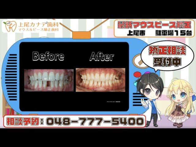 上尾市の歯医者が紹介する最新マウスピース矯正・パート237   上尾カナデ歯科・インビザライン