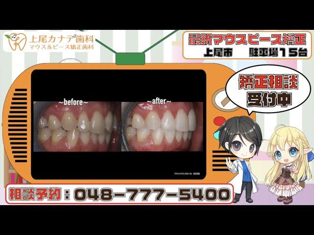 上尾市の歯医者が紹介する最新マウスピース矯正・パート238   上尾カナデ歯科・インビザライン