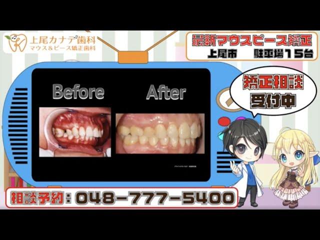 上尾市の歯医者が紹介する最新マウスピース矯正・パート239   上尾カナデ歯科・インビザライン